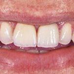 Zubne ljuske za prekrasan osmijeh